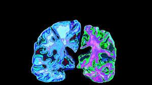 Cofnięcie choroby Alzheimera – możliwe?