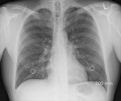 Tłuszcz w płucach?